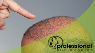 زراعة شعر الراس