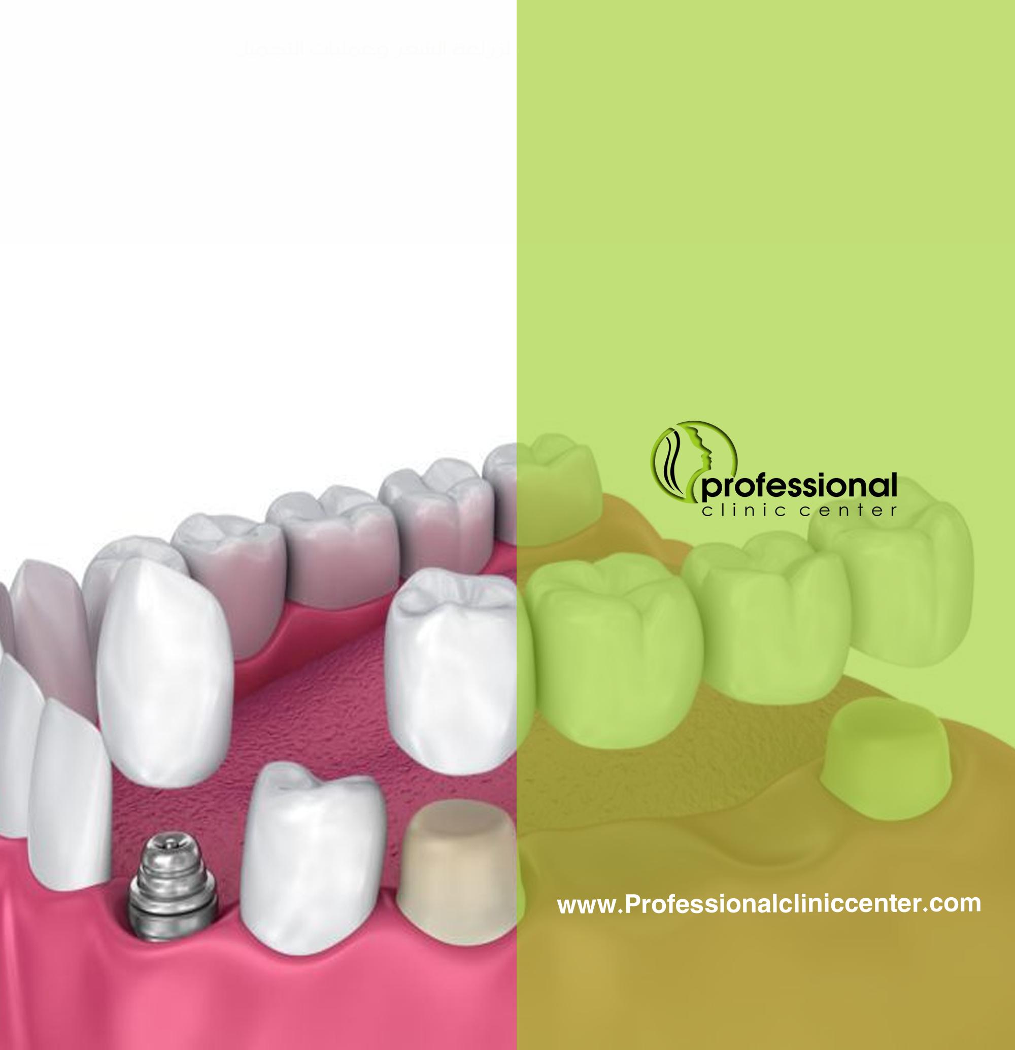 عملية تجميل الاسنان